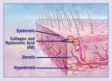 Skin Section Hyaluronic Acid